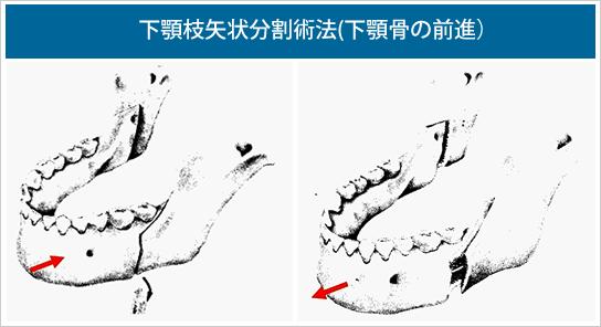 下顎枝矢状分割術法(下顎骨の前進)